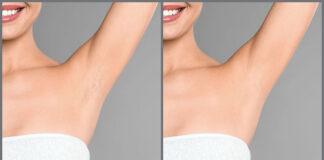 Depilacja laserowa – skuteczne i trwałe usuwanie owłosienia