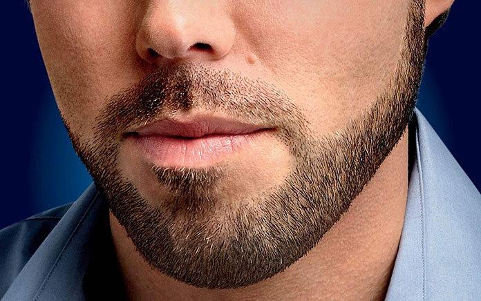 Przeszczep a posiadanie bujnych i pięknych włosów